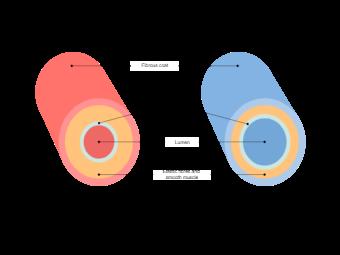 Artery Vein Diagram